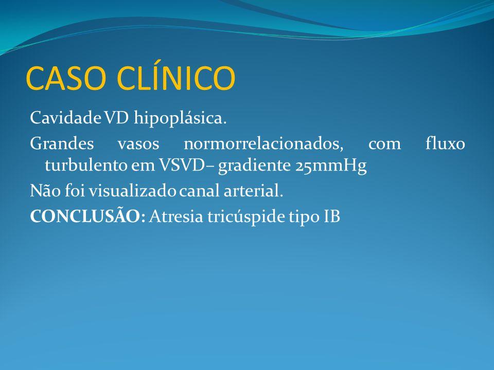 CASO CLÍNICO Cavidade VD hipoplásica. Grandes vasos normorrelacionados, com fluxo turbulento em VSVD– gradiente 25mmHg Não foi visualizado canal arter