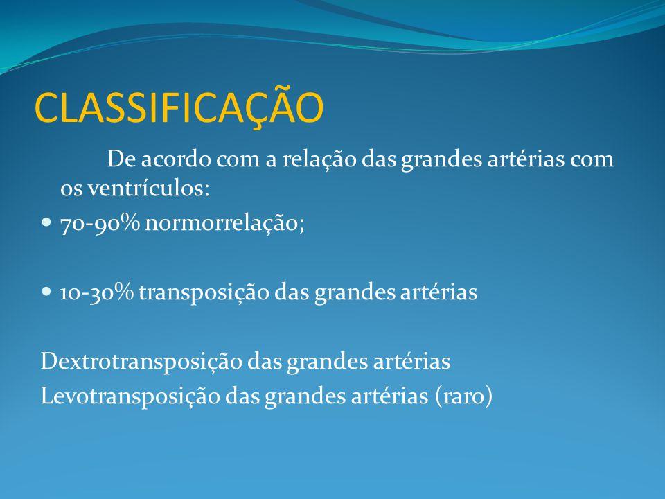 CLASSIFICAÇÃO De acordo com a relação das grandes artérias com os ventrículos:  70-90% normorrelação;  10-30% transposição das grandes artérias Dext