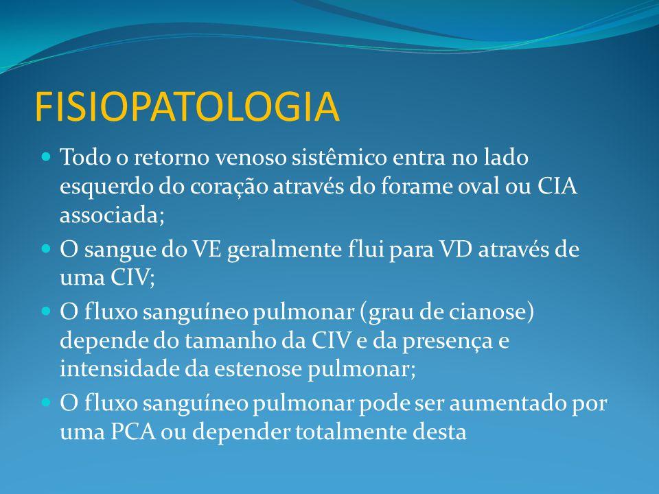 FISIOPATOLOGIA  Todo o retorno venoso sistêmico entra no lado esquerdo do coração através do forame oval ou CIA associada;  O sangue do VE geralmente flui para VD através de uma CIV;  O fluxo sanguíneo pulmonar (grau de cianose) depende do tamanho da CIV e da presença e intensidade da estenose pulmonar;  O fluxo sanguíneo pulmonar pode ser aumentado por uma PCA ou depender totalmente desta