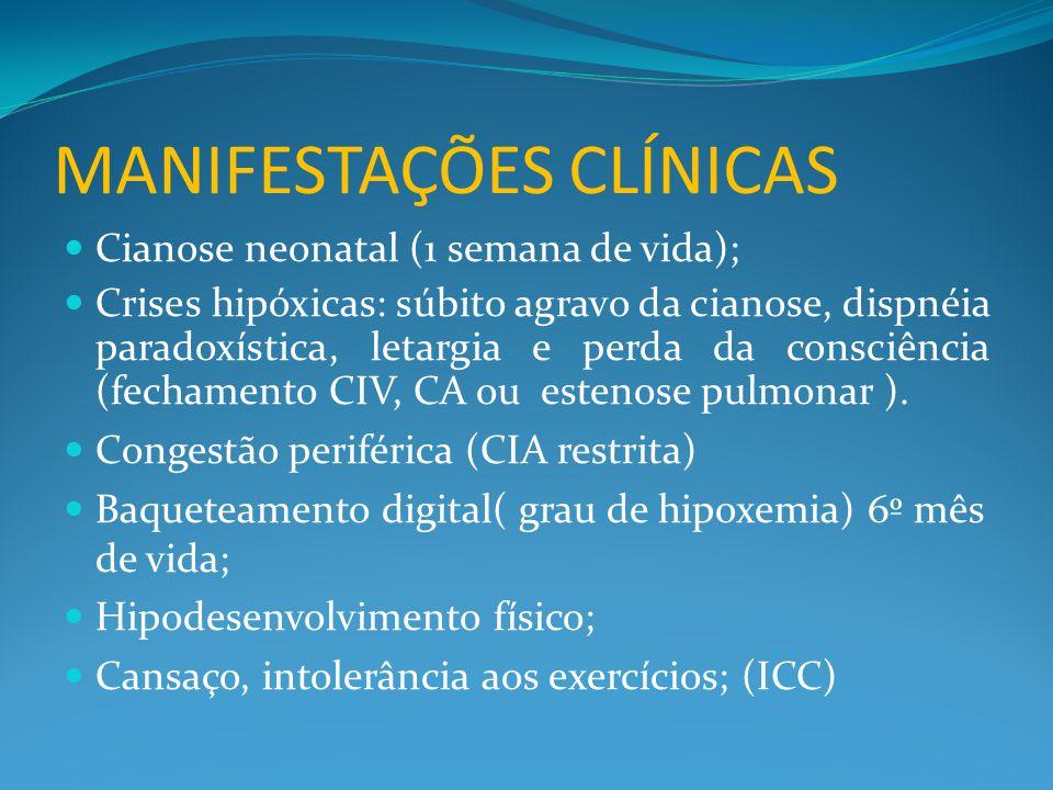 MANIFESTAÇÕES CLÍNICAS  Cianose neonatal (1 semana de vida);  Crises hipóxicas: súbito agravo da cianose, dispnéia paradoxística, letargia e perda da consciência (fechamento CIV, CA ou estenose pulmonar ).