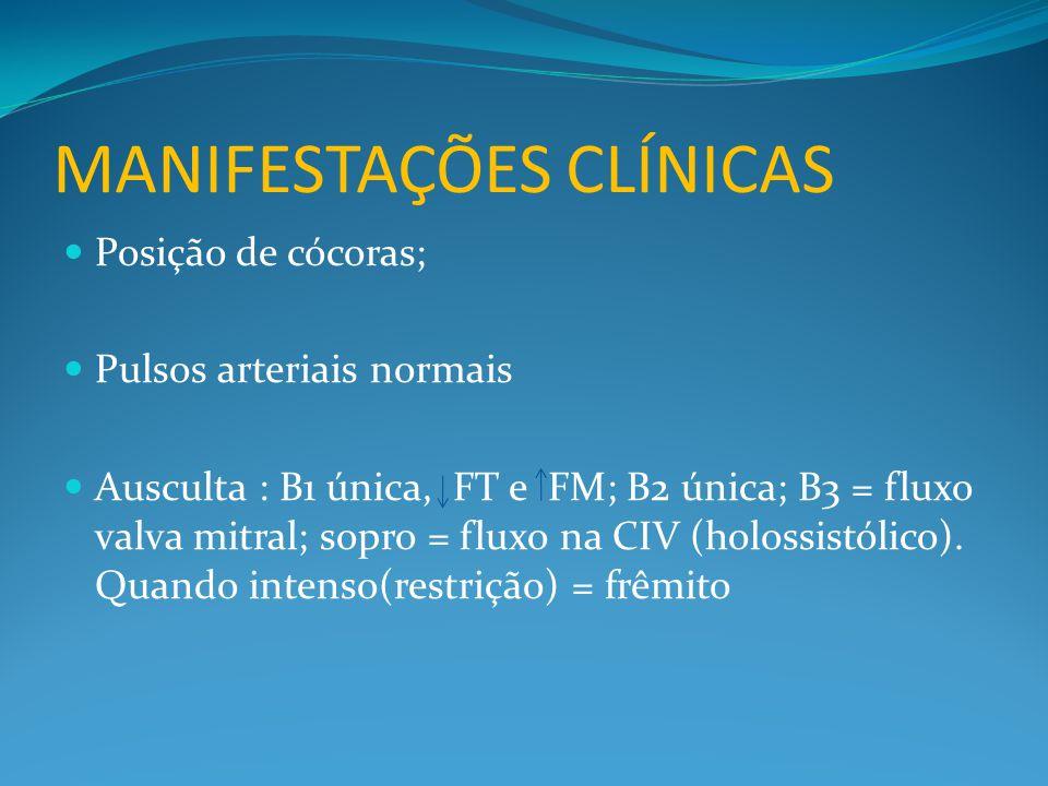 MANIFESTAÇÕES CLÍNICAS  Posição de cócoras;  Pulsos arteriais normais  Ausculta : B1 única, FT e FM; B2 única; B3 = fluxo valva mitral; sopro = fluxo na CIV (holossistólico).
