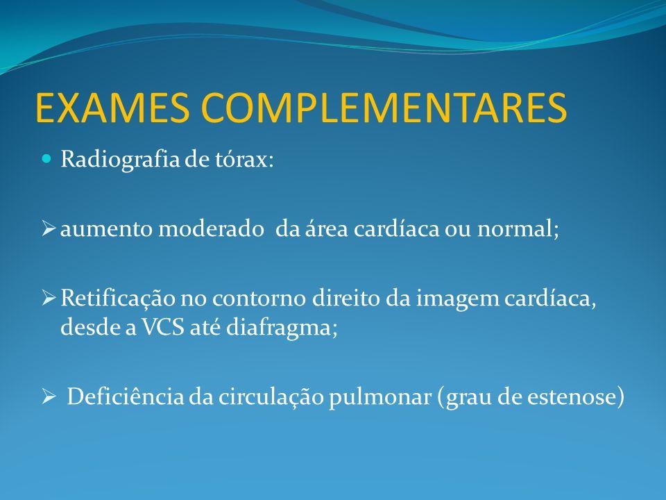 EXAMES COMPLEMENTARES  Radiografia de tórax:  aumento moderado da área cardíaca ou normal;  Retificação no contorno direito da imagem cardíaca, desde a VCS até diafragma;  Deficiência da circulação pulmonar (grau de estenose)