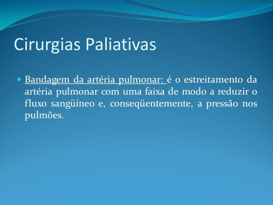 Cirurgias Paliativas  Bandagem da artéria pulmonar: é o estreitamento da artéria pulmonar com uma faixa de modo a reduzir o fluxo sangüíneo e, conseq