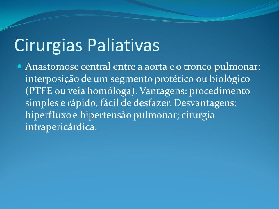 Cirurgias Paliativas  Anastomose central entre a aorta e o tronco pulmonar: interposição de um segmento protético ou biológico (PTFE ou veia homóloga).