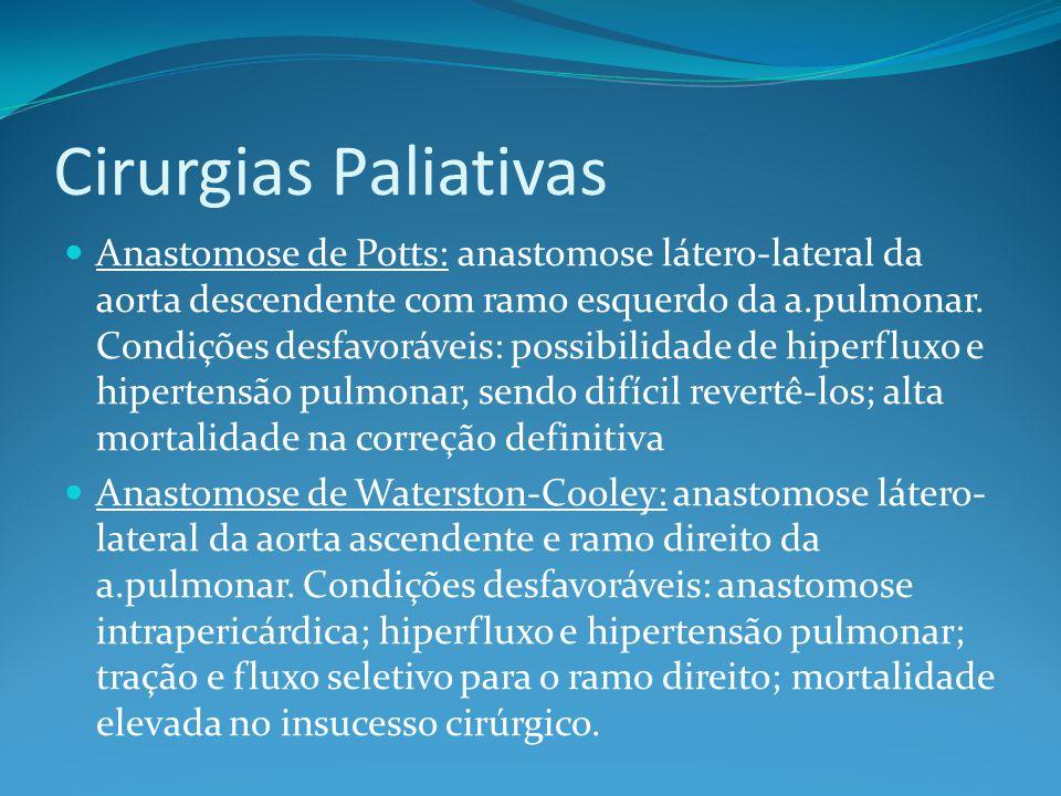 Cirurgias Paliativas  Anastomose de Potts: anastomose látero-lateral da aorta descendente com ramo esquerdo da a.pulmonar. Condições desfavoráveis: p