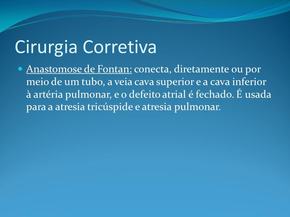 Cirurgia Corretiva  Anastomose de Fontan: conecta, diretamente ou por meio de um tubo, a veia cava superior e a cava inferior à artéria pulmonar, e o defeito atrial é fechado.