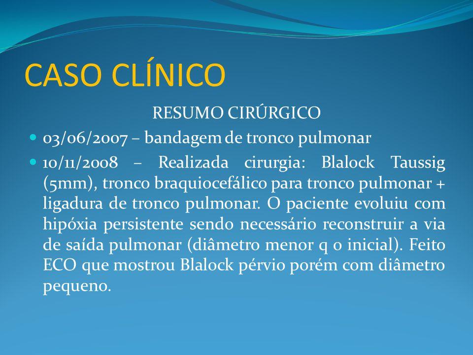 CASO CLÍNICO RESUMO CIRÚRGICO  03/06/2007 – bandagem de tronco pulmonar  10/11/2008 – Realizada cirurgia: Blalock Taussig (5mm), tronco braquiocefálico para tronco pulmonar + ligadura de tronco pulmonar.