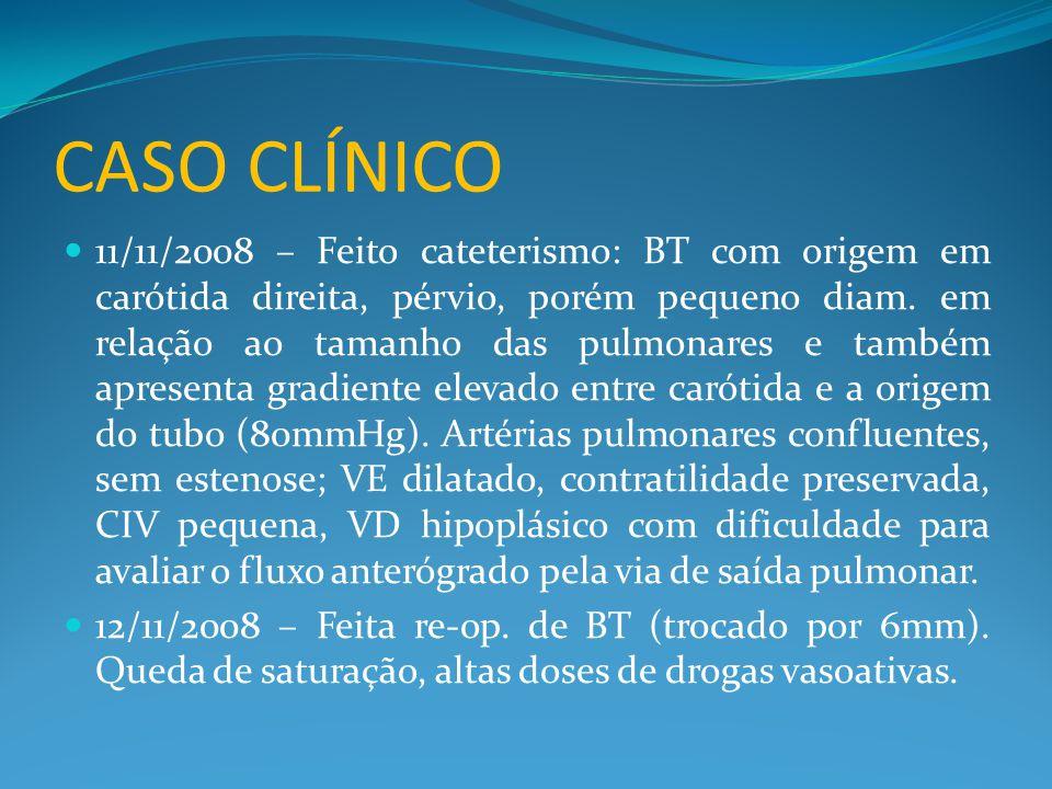 CASO CLÍNICO  11/11/2008 – Feito cateterismo: BT com origem em carótida direita, pérvio, porém pequeno diam. em relação ao tamanho das pulmonares e t