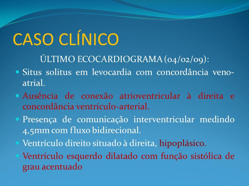 CASO CLÍNICO ÚLTIMO ECOCARDIOGRAMA (04/02/09):  Situs solitus em levocardia com concordância veno- atrial.  Ausência de conexão atrioventricular à d