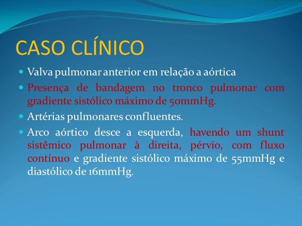 CASO CLÍNICO  Valva pulmonar anterior em relação a aórtica  Presença de bandagem no tronco pulmonar com gradiente sistólico máximo de 50mmHg.  Arté