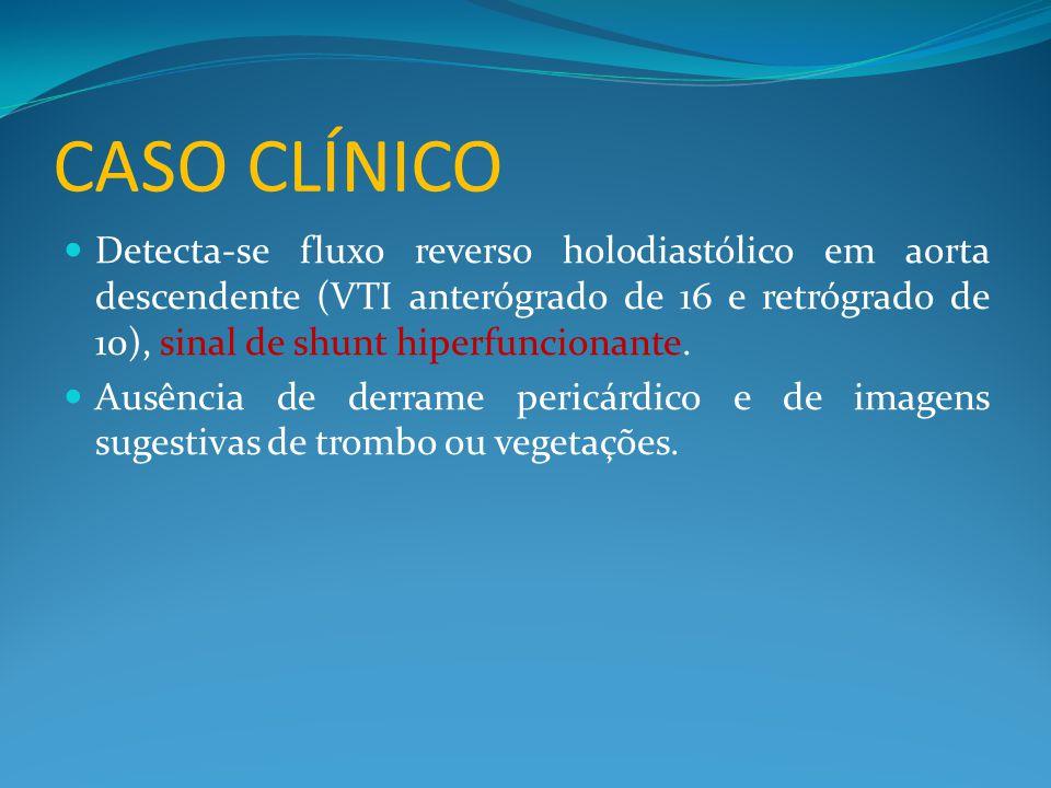 CASO CLÍNICO  Detecta-se fluxo reverso holodiastólico em aorta descendente (VTI anterógrado de 16 e retrógrado de 10), sinal de shunt hiperfuncionante.
