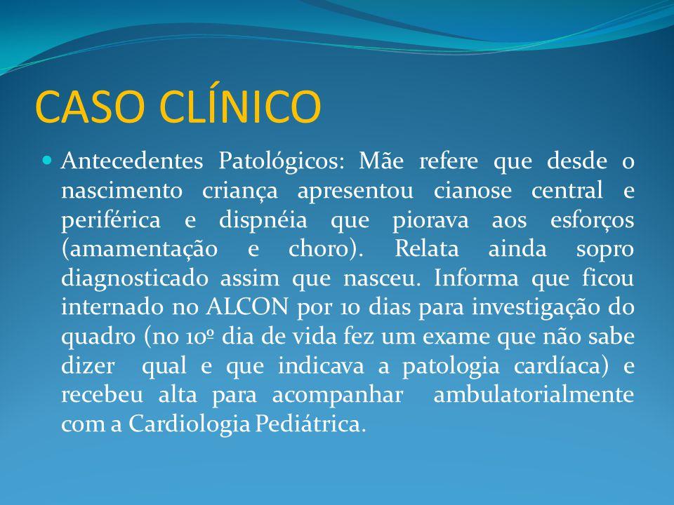 CASO CLÍNICO  Valva pulmonar anterior em relação a aórtica  Presença de bandagem no tronco pulmonar com gradiente sistólico máximo de 50mmHg.