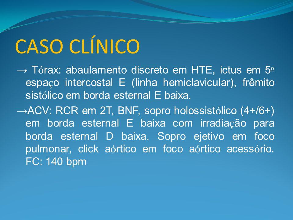 CASO CLÍNICO → T ó rax: abaulamento discreto em HTE, ictus em 5 º espa ç o intercostal E (linha hemiclavicular), frêmito sist ó lico em borda esternal E baixa.