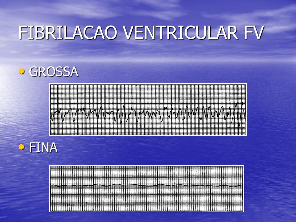 FIBRILACAO VENTRICULAR FV • GROSSA • FINA