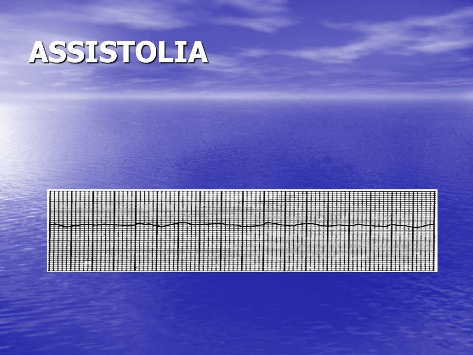 ASSISTOLIA