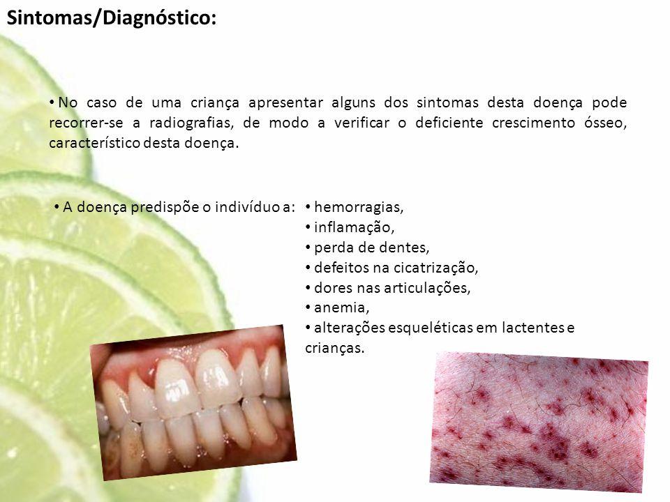Sintomas/Diagnóstico: • No caso de uma criança apresentar alguns dos sintomas desta doença pode recorrer-se a radiografias, de modo a verificar o defi