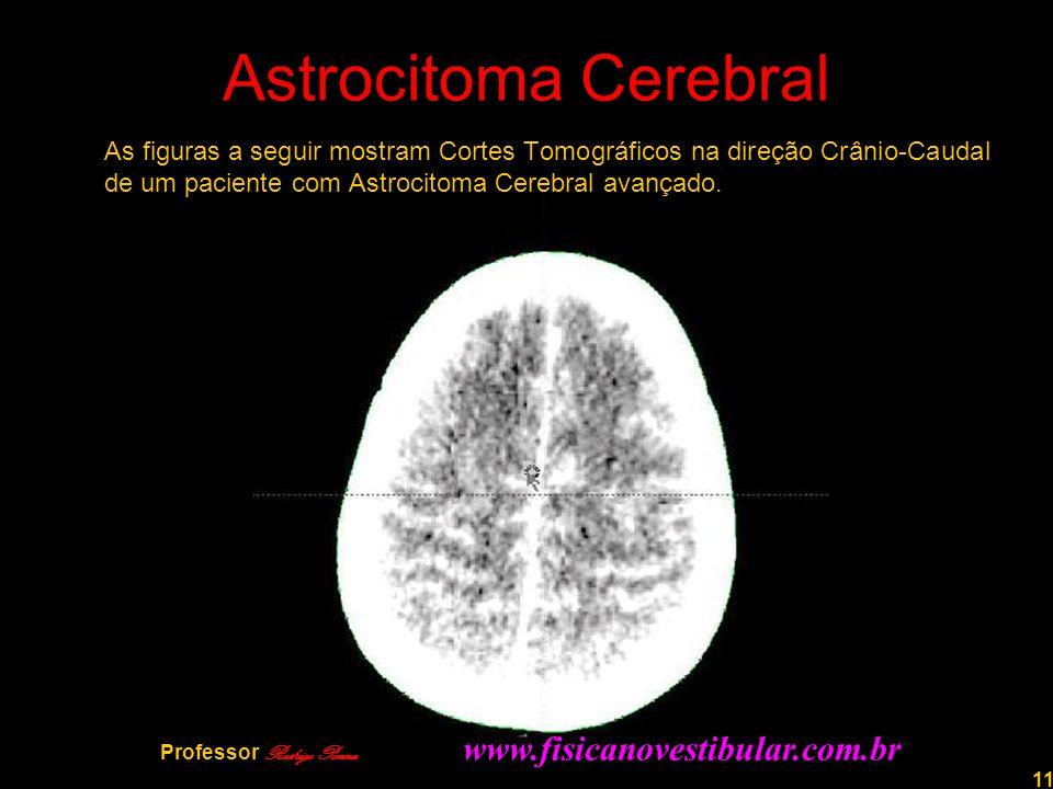 11 Astrocitoma Cerebral As figuras a seguir mostram Cortes Tomográficos na direção Crânio-Caudal de um paciente com Astrocitoma Cerebral avançado. Pro