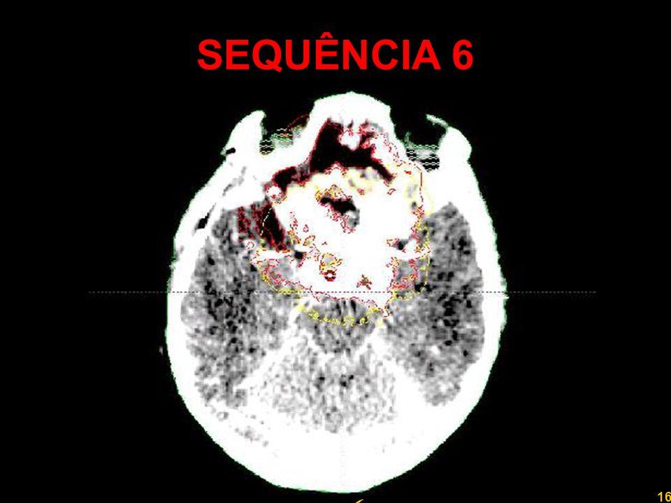 16 Professor Rodrigo Penna SEQUÊNCIA 6