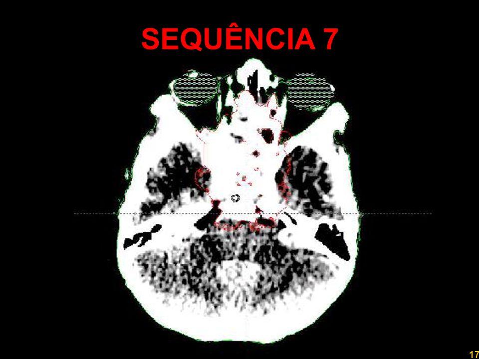 17 Professor Rodrigo Penna SEQUÊNCIA 7