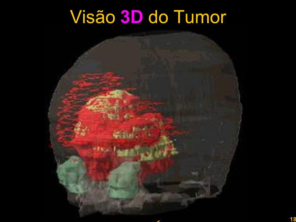 18 Professor Rodrigo Penna Visão 3D do Tumor