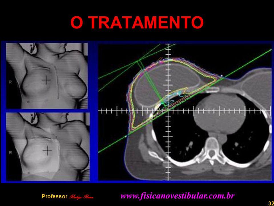 32 O TRATAMENTO Professor Rodrigo Penna www.fisicanovestibular.com.br