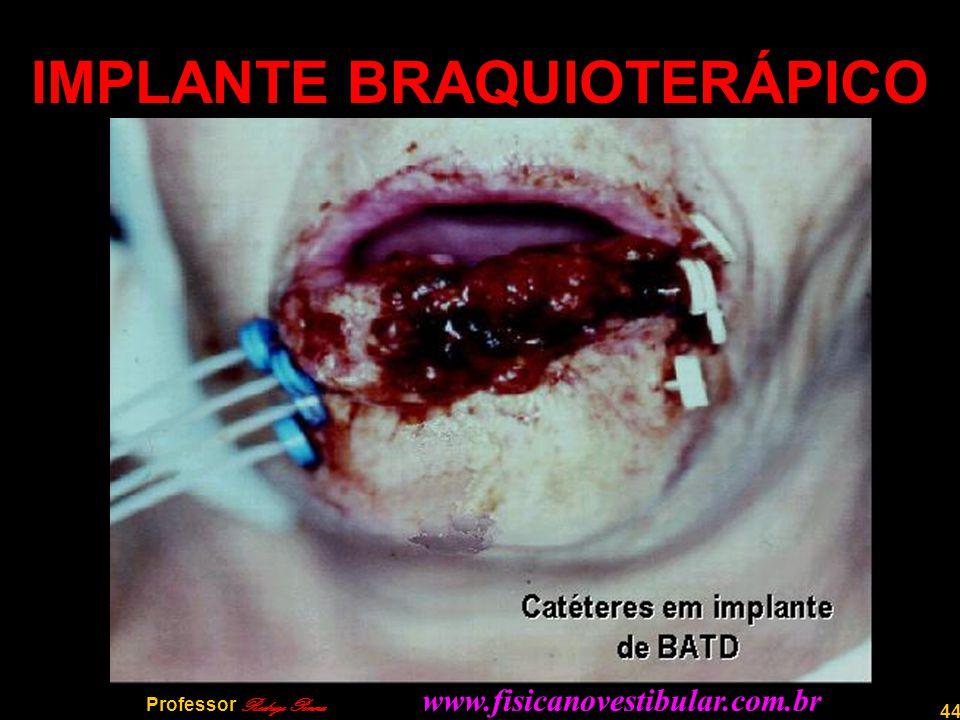44 IMPLANTE BRAQUIOTERÁPICO Professor Rodrigo Penna www.fisicanovestibular.com.br