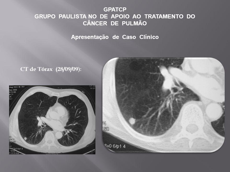 GPATCP GRUPO PAULISTA NO DE APOIO AO TRATAMENTO DO CÂNCER DE PULMÃO Apresentação de Caso Clínico CT de Tórax (28/09/09 ):