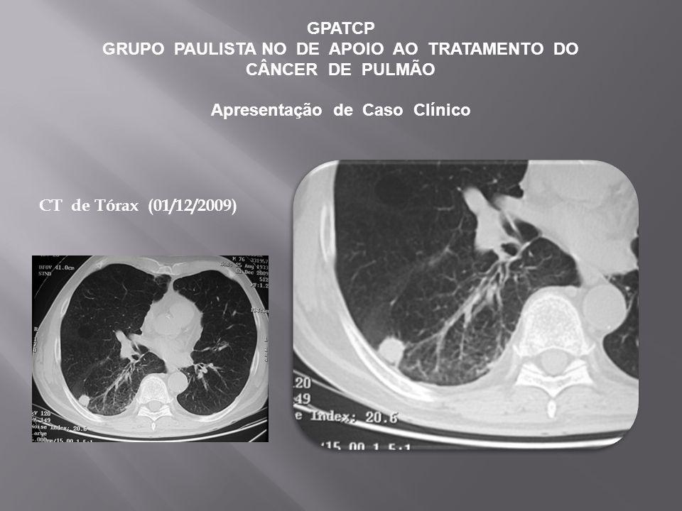 GPATCP GRUPO PAULISTA NO DE APOIO AO TRATAMENTO DO CÂNCER DE PULMÃO Apresentação de Caso Clínico CT de Tórax (01/12/2009)