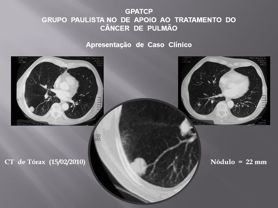 GPATCP GRUPO PAULISTA NO DE APOIO AO TRATAMENTO DO CÂNCER DE PULMÃO Apresentação de Caso Clínico CT de Tórax (15/02/2010) Nódulo = 22 mm