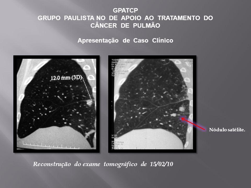GPATCP GRUPO PAULISTA NO DE APOIO AO TRATAMENTO DO CÂNCER DE PULMÃO Apresentação de Caso Clínico Reconstrução do exame tomográfico de 15/02/10 Nódulo satélite.