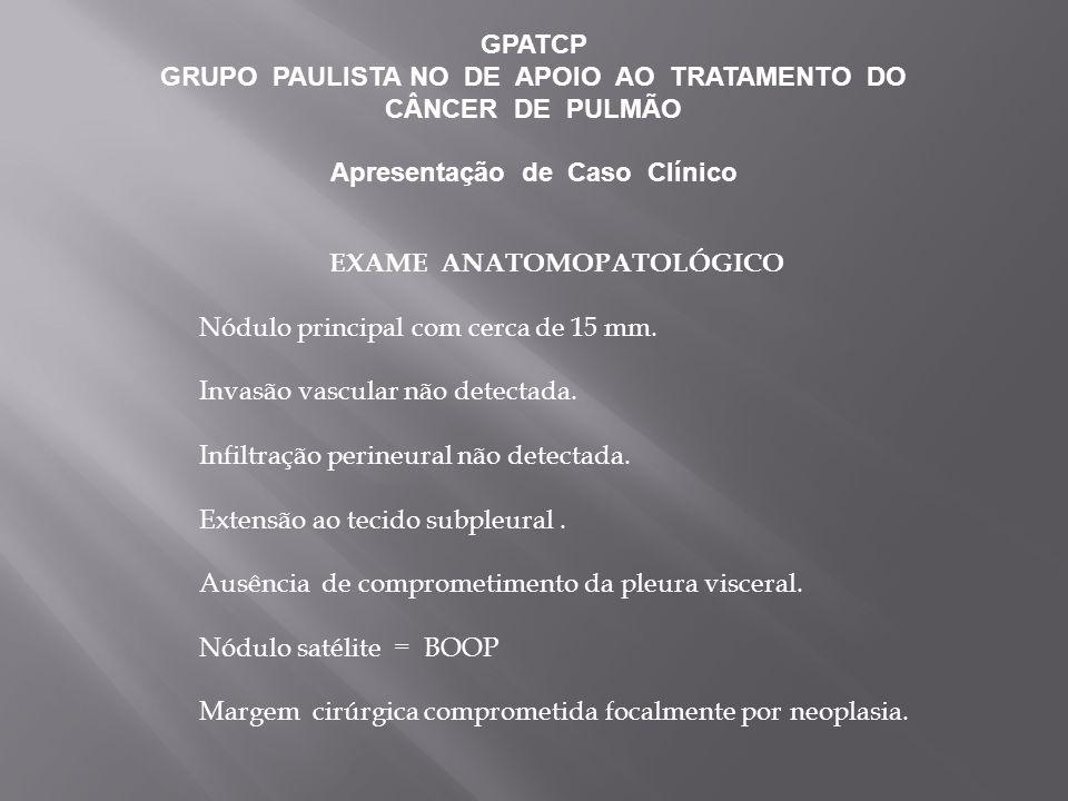 GPATCP GRUPO PAULISTA NO DE APOIO AO TRATAMENTO DO CÂNCER DE PULMÃO Apresentação de Caso Clínico EXAME ANATOMOPATOLÓGICO Nódulo principal com cerca de 15 mm.