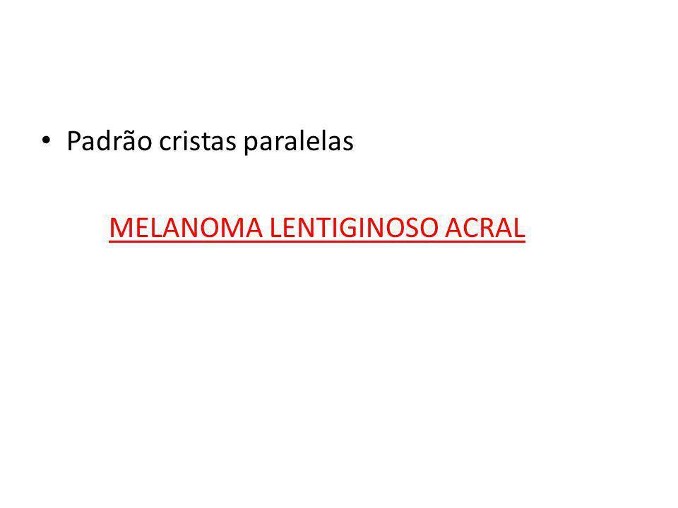 • Padrão cristas paralelas MELANOMA LENTIGINOSO ACRAL