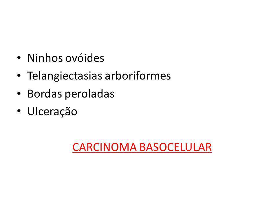 • Ninhos ovóides • Telangiectasias arboriformes • Bordas peroladas • Ulceração CARCINOMA BASOCELULAR