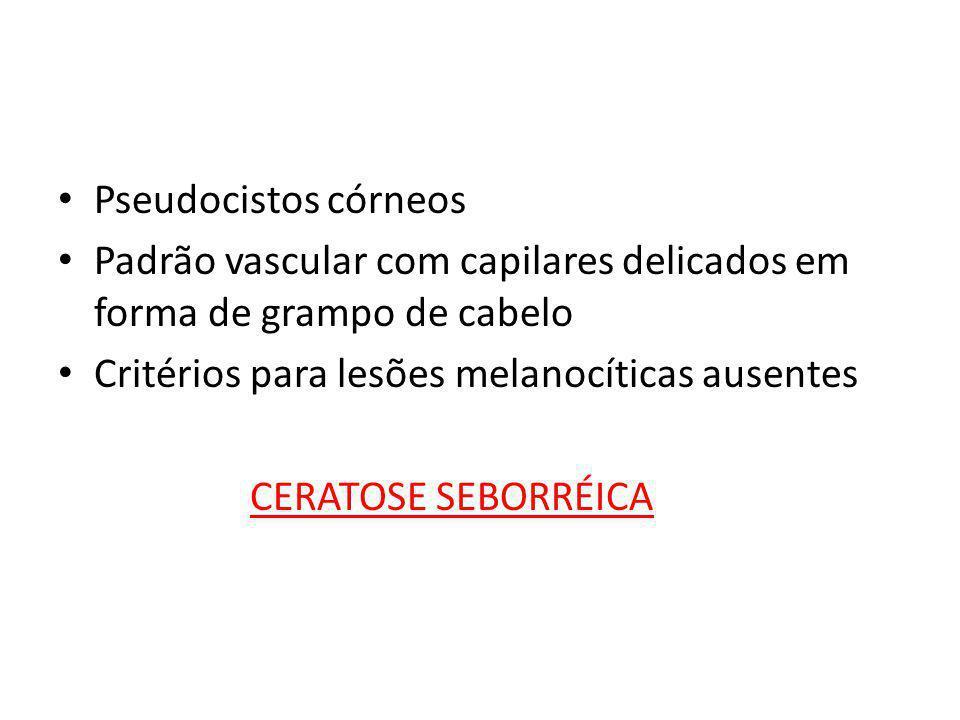• Pseudocistos córneos • Padrão vascular com capilares delicados em forma de grampo de cabelo • Critérios para lesões melanocíticas ausentes CERATOSE