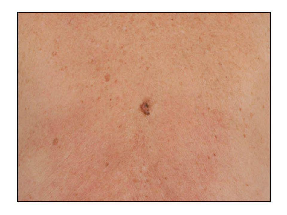 • Pseudocistos córneos • Padrão vascular com capilares delicados em forma de grampo de cabelo • Critérios para lesões melanocíticas ausentes CERATOSE SEBORRÉICA