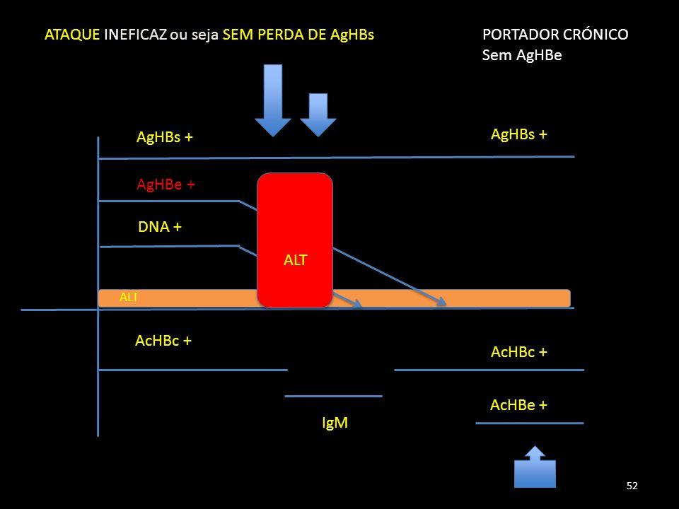 AgHBs + AgHBe + DNA + AcHBc + IgM AcHBe + ALT ATAQUE INEFICAZ ou seja SEM PERDA DE AgHBsPORTADOR CRÓNICO Sem AgHBe AcHBc + AgHBs + 52
