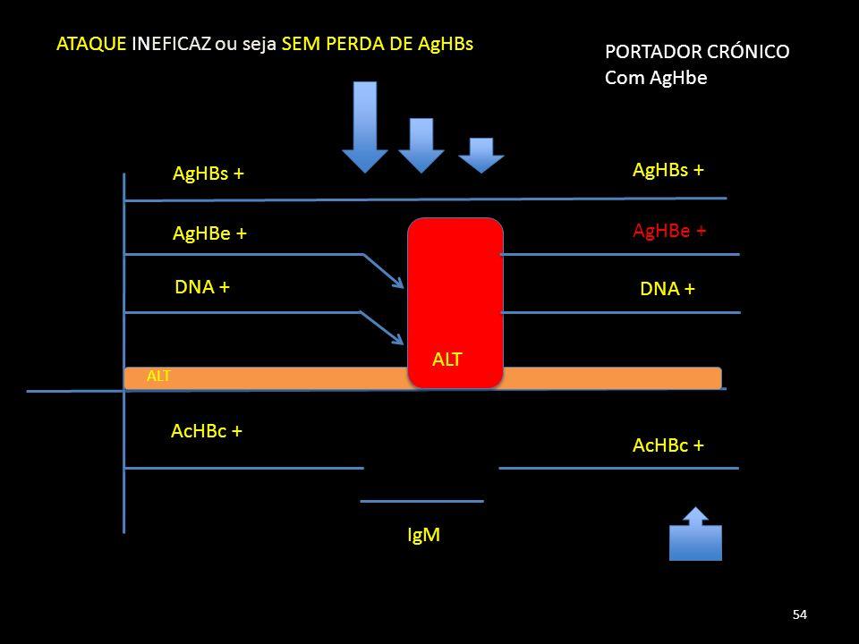 AgHBs + AgHBe + DNA + AcHBc + IgM ALT PORTADOR CRÓNICO Com AgHbe AcHBc + AgHBe + AgHBs + DNA + 54 ATAQUE INEFICAZ ou seja SEM PERDA DE AgHBs