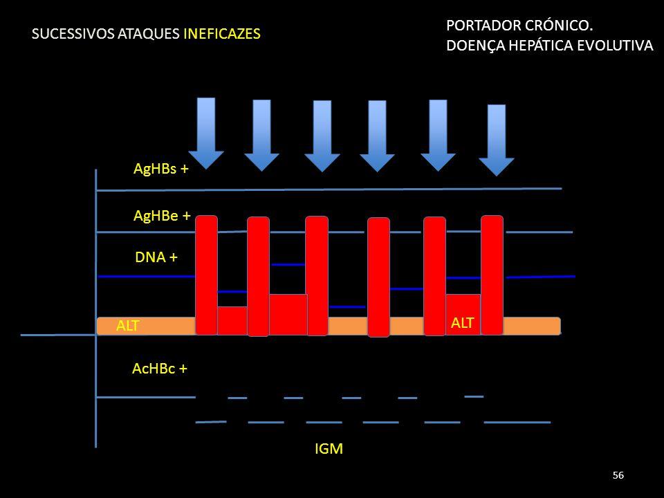 AgHBs + AgHBe + DNA + AcHBc + IGM ALT SUCESSIVOS ATAQUES INEFICAZES 56 PORTADOR CRÓNICO.