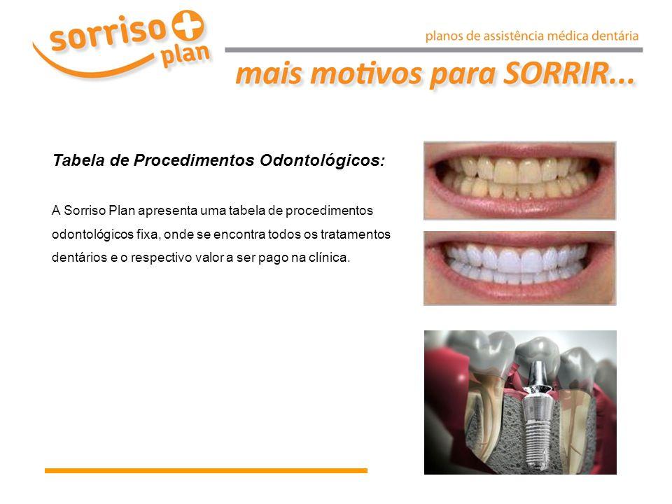 Tabela de Procedimentos Odontológicos: A Sorriso Plan apresenta uma tabela de procedimentos odontológicos fixa, onde se encontra todos os tratamentos