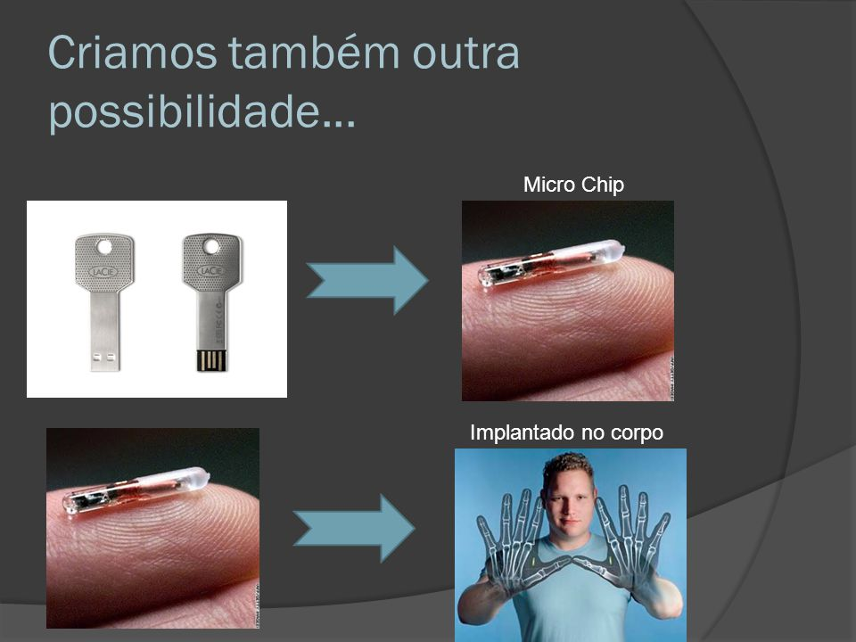 Criamos também outra possibilidade... Micro Chip Implantado no corpo