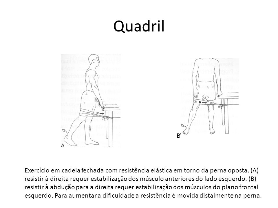 Quadril Exercício em cadeia fechada com resistência elástica em torno da perna oposta. (A) resistir à direita requer estabilização dos músculo anterio