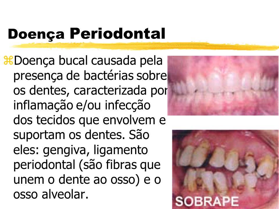 Doença Periodontal zDoença bucal causada pela presença de bactérias sobre os dentes, caracterizada por inflamação e/ou infecção dos tecidos que envolv