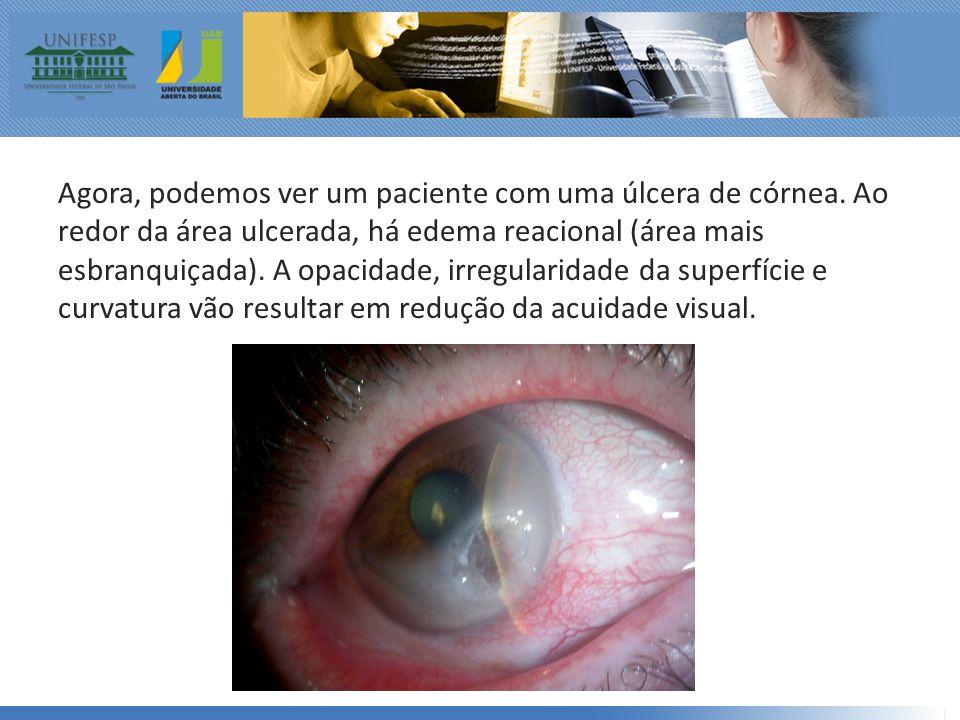 Agora, podemos ver um paciente com uma úlcera de córnea.