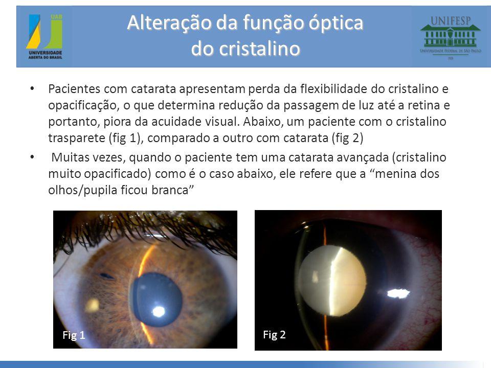 Alteração da função óptica do cristalino • Pacientes com catarata apresentam perda da flexibilidade do cristalino e opacificação, o que determina redução da passagem de luz até a retina e portanto, piora da acuidade visual.
