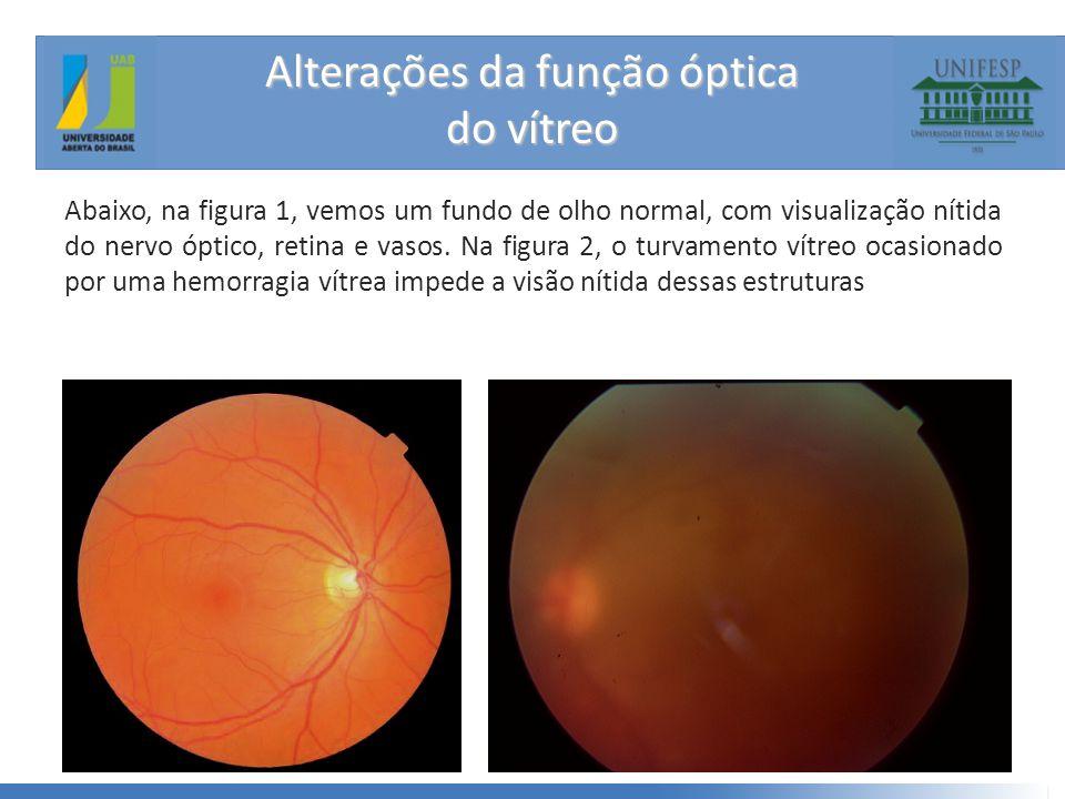 Alterações da função óptica do vítreo Abaixo, na figura 1, vemos um fundo de olho normal, com visualização nítida do nervo óptico, retina e vasos.