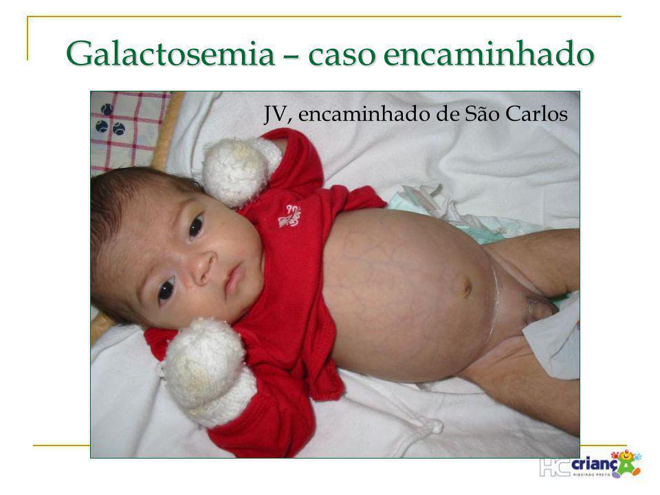 Galactosemia – caso encaminhado JV, encaminhado de São Carlos