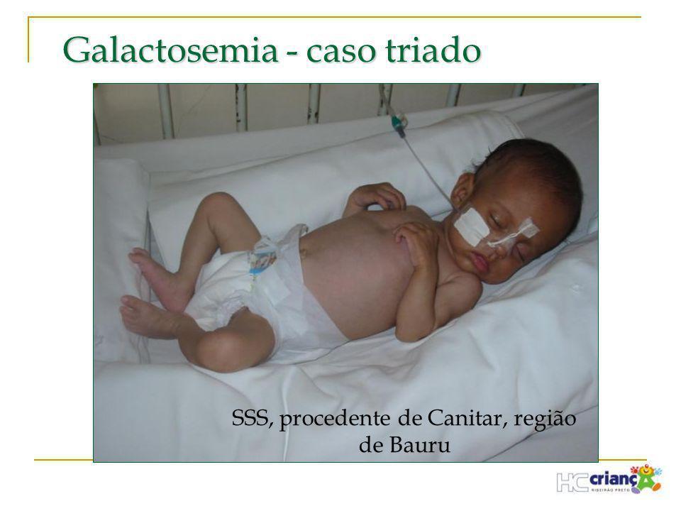 Galactosemia - caso triado SSS, procedente de Canitar, região de Bauru