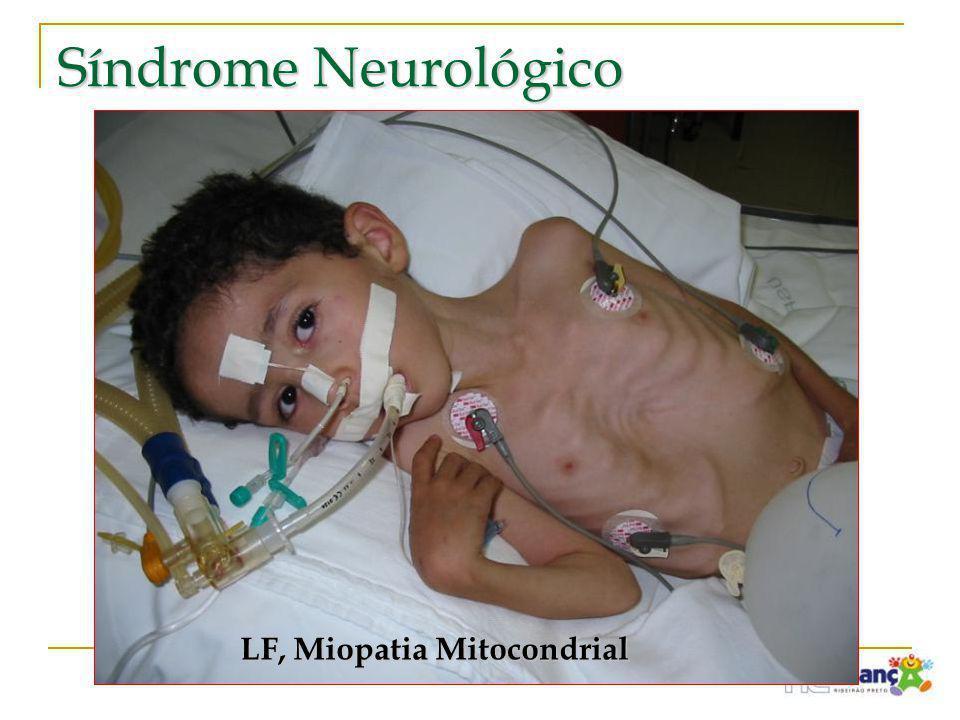 Síndrome Neurológico LF, Miopatia Mitocondrial