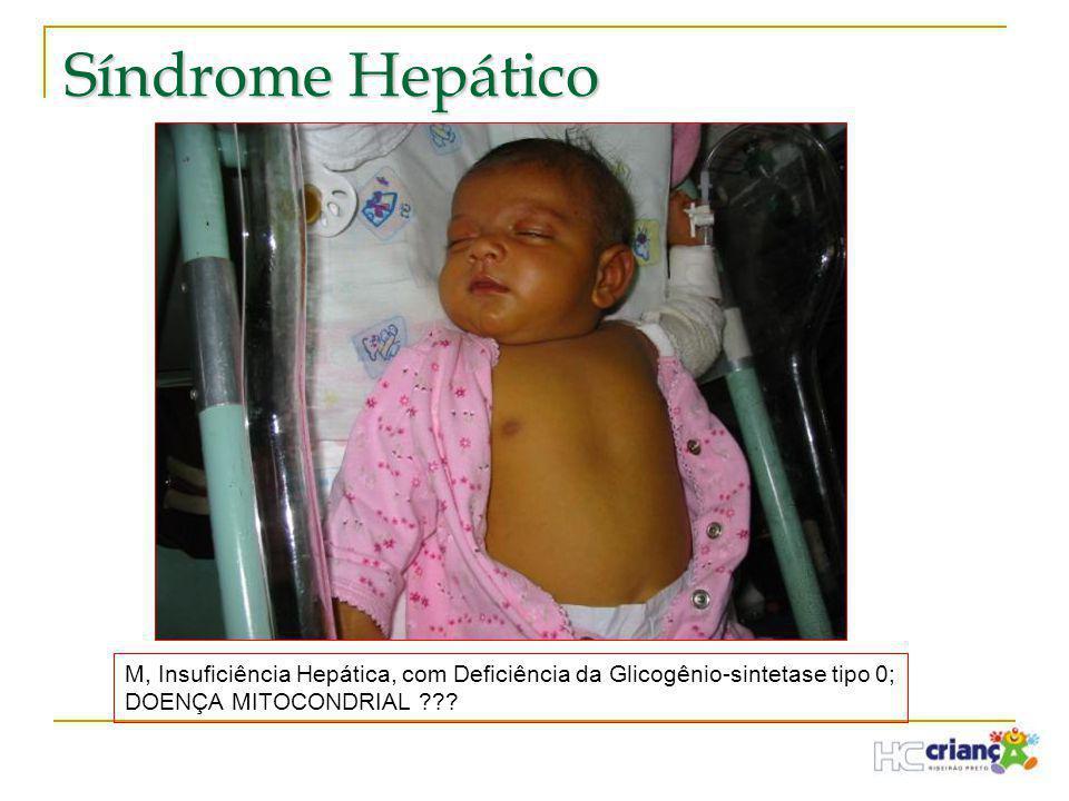 Síndrome Hepático M, Insuficiência Hepática, com Deficiência da Glicogênio-sintetase tipo 0; DOENÇA MITOCONDRIAL ???