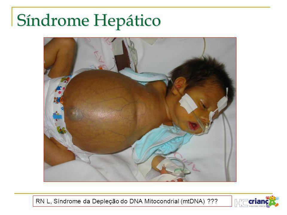 Síndrome Hepático RN L, Síndrome da Depleção do DNA Mitocondrial (mtDNA) ???